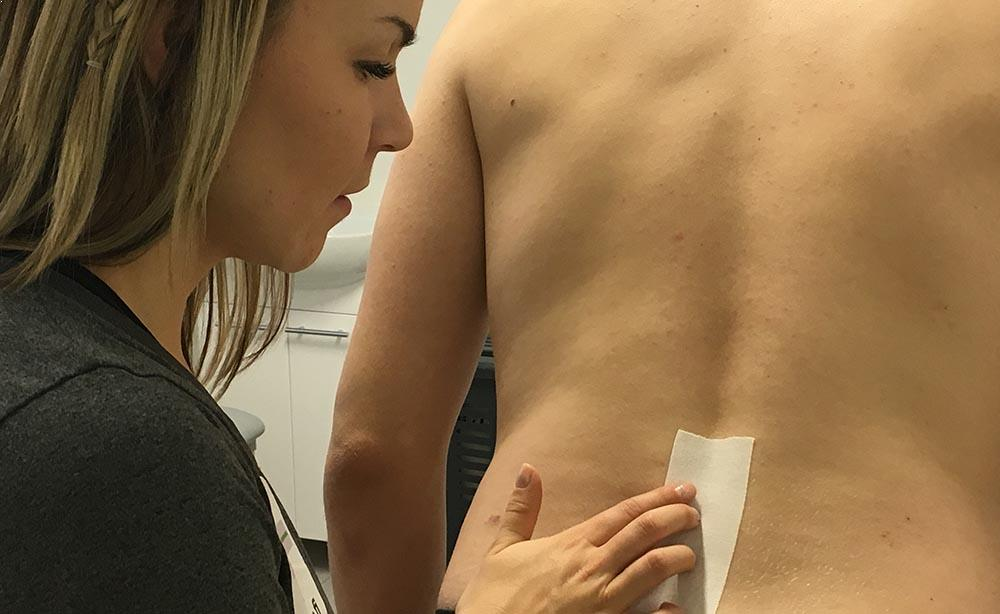 Saija-Maria Saari kiinnittää teippiä fysioterapiapotilaan ristiselkään